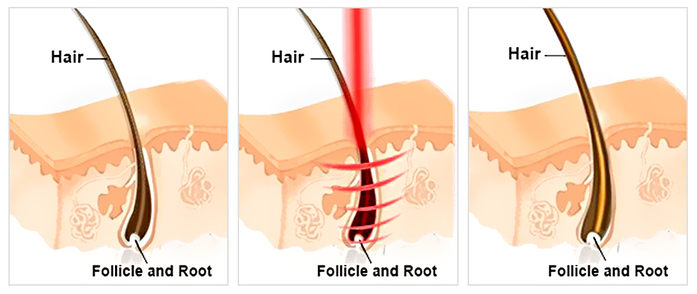 How does Fotona® Hair Growth Laser works?