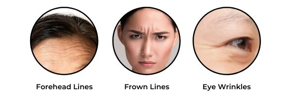 Who is suitable for wrinkle removal